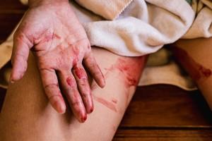 สามีสุดทน ภรรยาบังคับให้ดูดเลือดประจำเดือน ร้องศาลฟ้องหย่า