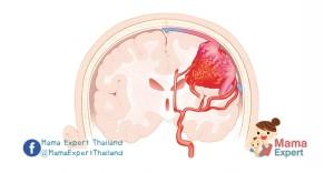 คุณแม่แชร์ประสบการณ์ : ลูกป่วยเป็น เส้นเลือดในสมองเปราะแตกในเด็ก