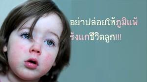 ดูแลลูกอย่างไร ห่างไกล โรคภูมิแพ้