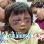 เด็กวัย 5 ขวบ ถูกแม่แท้ๆ - พ่อเลี้ยงทุบตีใบหน้าฟกช้ำ อาการสาหัส