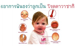 โรคคาวาซากิ โรคอันตรายในเด็กที่แม่ต้องรู้ ที่แม่ต้องเช็ค!!!