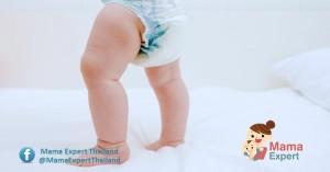 วิธีทดสอบว่าลูกขาโก่งจริงหรือไม่  หรือแค่แม่คิดไปเองมาดูกัน