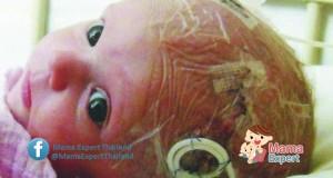 โรคเยื่อหุ้มสมองอักเสบในเด็ก สาเหตุ อาการ วิธีรักษา วิธีป้องกันและวัคซีน