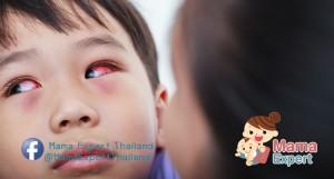 ลูกน้อยขยี้ตา ระวังโรคเยื่อบุตาอักเสบในเด็ก โรคใกล้ตัวที่คุณแม่ควรรู้
