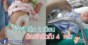 คุณแม่แชร์ประสบการณ์ : ลูกสาว 2 เดือน 24 วัน ต้องผ่าตัดถึง 4  ครั้ง เพราะมีหนองไหลที่ช่องคลอด