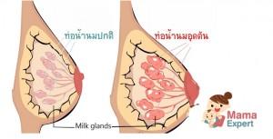 ท่อน้ำนมอุดตัน วิธีการดูแลตนเองของคุณแม่เมื่อมีอาการท่อน้ำนมอุดตัน