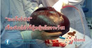มะเร็งรังไข่ เรื่องใกล้ตัวที่ผู้หญิงต้องระวัง!!