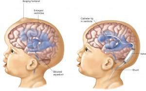 เรื่องน่ารู้ เกี่ยวกับ โรคหัวบาตร โรคหัวแตงโม  โรคโพรงน้ำในสมองขนาดใหญ่