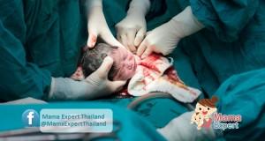 ขั้นตอนการผ่าตัดคลอดลูกและการตรวจร่างกายเด็กเมื่อแรกคลอด