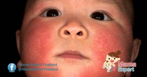 อาการของโรคผื่นภูมิแพ้ผิวหนังในเด็ก ที่คุณแม่ต้องรู้