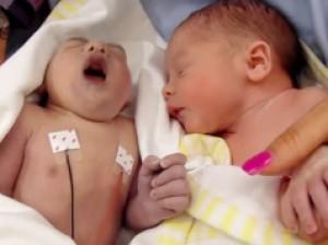 โรค Anencephaly  พราก 1 ชีวิตของคู่แฝด