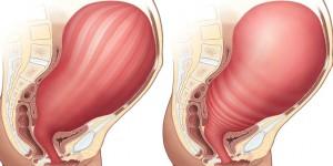 ท้องแข็งถี่ในแม่ตั้งครรภ์ ทำอย่างไรให้หายท้องแข็ง