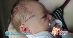 การดูแลบาดแผลของลูกน้อย เมื่อลูกน้อยมีบาดแผล แผลสด แผลแห้ง