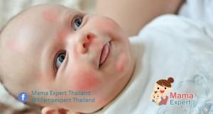 อาการผิดปกติของทารกที่ควรรีบพบแพทย์   คุณแม่ต้องรู้