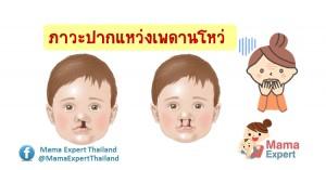 ปากแหว่งเพดานโหว่ ภาวะผิดปกติในเด็ก