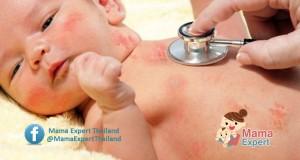 แพทย์เตือนแม่ลูกอ่อน ลูกนอนดึกมากไประวัง เป็นโรคงูสวัดในเด็ก !!!