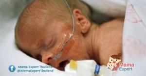 ภาวะสูดสำลักขี้เทาเมื่อแรกคลอด กลุ่มอาการความผิดปกติที่เกิดขึ้นในเด็กแรกเกิด