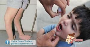 โรคโปลิโอ โรคร้าย อันตรายถึงพิการ!!!