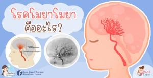 โรคโมยาโมยาใช่โรคใหม่หรือไม่? มาทำความรู้จักกัน!!!