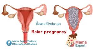 7 อาการเตือนว่าคุณตั้งครรภ์ไข่ปลาอุก (Molar pregnancy)