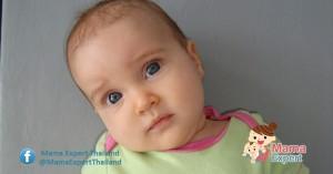 โรคคอเอียงแต่กำเนิด คอเอียงตั้งแต่อยู่ในครรภ์ รักษาอย่างไรดี?