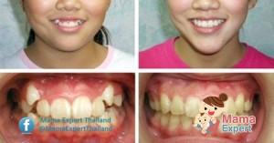 จัดฟันช่วยหน้าเรียว ดั้งโด่งจริงหรือไม่ หมอฟันแจงดังนี้
