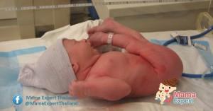 ทารกท่าก้น ทารกที่ไม่กลับหัว หลังคลอดขาแบะ  สะโพกหลุด รักษาอย่างไร