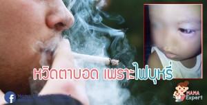 อุทาหรณ์! ไฟบุหรี่ปลิวเข้าตาเด็ก 1 ขวบ บวมช้ำ หวิดตาบอด