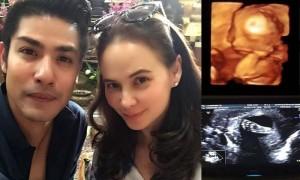 แอน – ภูริ เผยโฉมเบบี๋ผ่านภาพอัลตราซาวด์ อายุครรภ์ 21 สัปดาห์