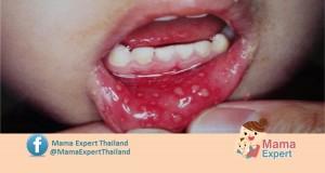 รศ. นพ. สังคม จงพิพัฒน์วณิชย์  เตือน!!! โรคแผลในปากชนิด Herpangina ระบาด