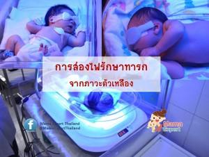 ส่องไฟรักษาทารกตัวเหลืองทำได้อย่างไร คุณแม่มือใหม่ต้องรู้
