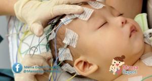 อาการชักในเด็กแรกเกิด อันตรายที่คุณแม่ควรป้องกันไม่ให้ลูกชัก