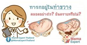 ทารกอยู่ในท่าขวาง (transverse position) คลอดอย่างไร  อันตรายหรือไม่