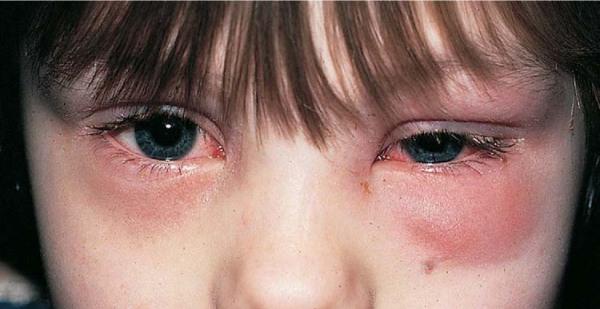 การรักษา โรคไซนัสอักเสบในเด็ก