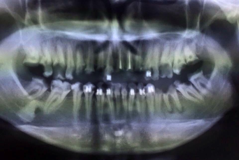 อุทาหรณ์ จัดฟันเถื่อนตอนรักษาจ่ายเพิ่ม 100 เท่า