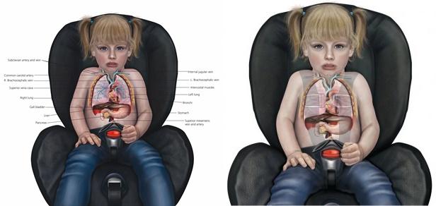 สุขภาพลูกรัก : อ้อมกอดมรณะ !!! อันตรายจากการอุ้มลูกนั่งตักที่คาดไม่ถึง