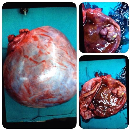 แพทย์ผ่าถุงน้ำรังไข่หนักถึง 34 กก. ผู้หญิงต้องระวัง!!!